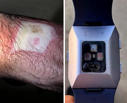 Radiated Wrist by a Smartwatch